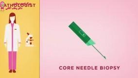 آزمایش تومورهای سینه برای تشخیص سرطان پستان