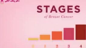 بررسی استیج های مختلف سرطان پستان و روش های درمان آن
