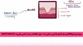 درمان التهاب روده، آی بی دی