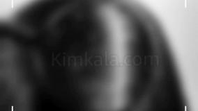 شامپوی ویتامینه ضد شوره /09120750932/بهترین درمان برای شوره سر
