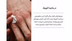درمان قطعی بیماری اگزمای پوستی