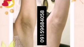 درمان ورفع تیرگی های پوستی