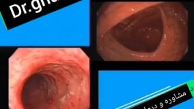 درمان کولیت و کرون روده