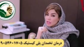 درمان تخمدان پلی کیستیک در زنان