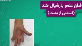 پروتز دست و انواع آن