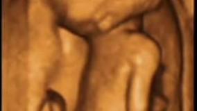 سونوگرافی چهار بعدی هفته پانزدهم بارداری