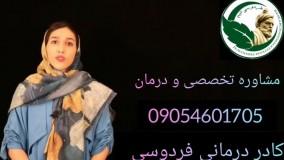 علائم تخمدان پلی کیستیک در زنان