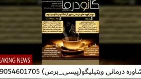 موثرترین درمان پیسی_ویتیلیگو در ایران