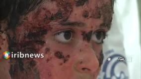 کودک فداکار با تلاش پزشکان شیرازی درمان و از بیمارستان مرخص شد
