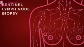 علت برداشتن غدد لنفاوی هنگام خارج کردن غدد سرطانی