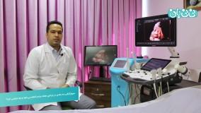 زمان انجام سونوگرافی سه بعدی بارداری