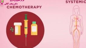آشنایی با شیمی درمانی و چگونگی از بین بردن سلول های سرطانی با آن