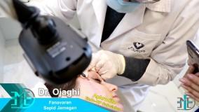 دستگاه جوانسازی پوست RF Subcision