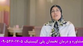 درمان تنبلی تخمدان پلی کیستیک و نازایی زنان