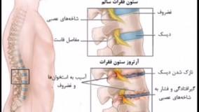 درمان قطعی روماتیسم مفصلی و آرتروز