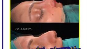عمل زیبایی بینی