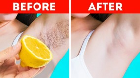 روتین مراقبت از پوست - ترفندهای جالب برای جلوگیری از مشکلات تابستان