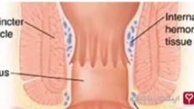 درمان سندروم روده تحریک پذیر