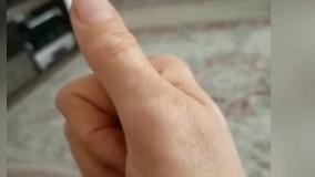 ویتیلیگو(پیسی_برص ) و درمان قطعی بیماری های پوستی