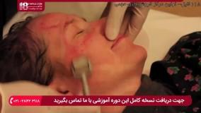 آموزش پاکسازی صورت - درمان با درمارولر