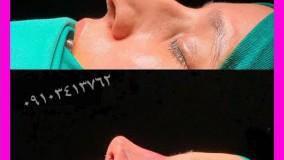 فیلم عمل زیبایی بینی