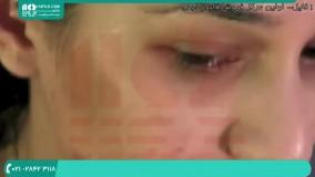 آموزش پاکسازی صورت | جوانسازی پوست | فیشیال صورت (پاکسازی ماهیانه پوست)