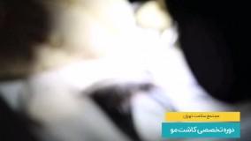 دوره تخصصی کاشت مو در مجتمع سلامت تهران