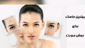 درمان منافذ باز پوست و درمان لک و جای جوش