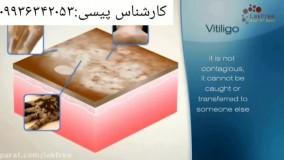 درمان قطعی بیماری پیسی ویتیلیگو و برص