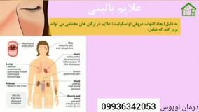 درمان قطعی بیماری پوستی لوپوس در ایران چیست
