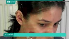 تتو صورت-تتوی چهره-تتو بدن -نحوه استفاده از درمارولر برای جای جوش