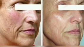 موثرترین کرم جوان سازی پوست(متخصص پوست)